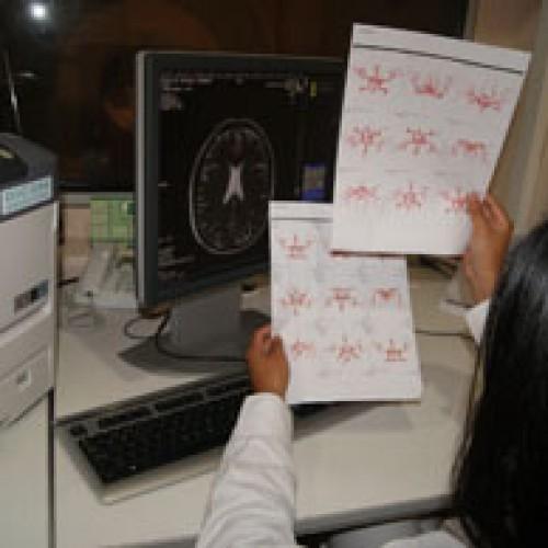Impresión de imágenes médicas con tecnología LED