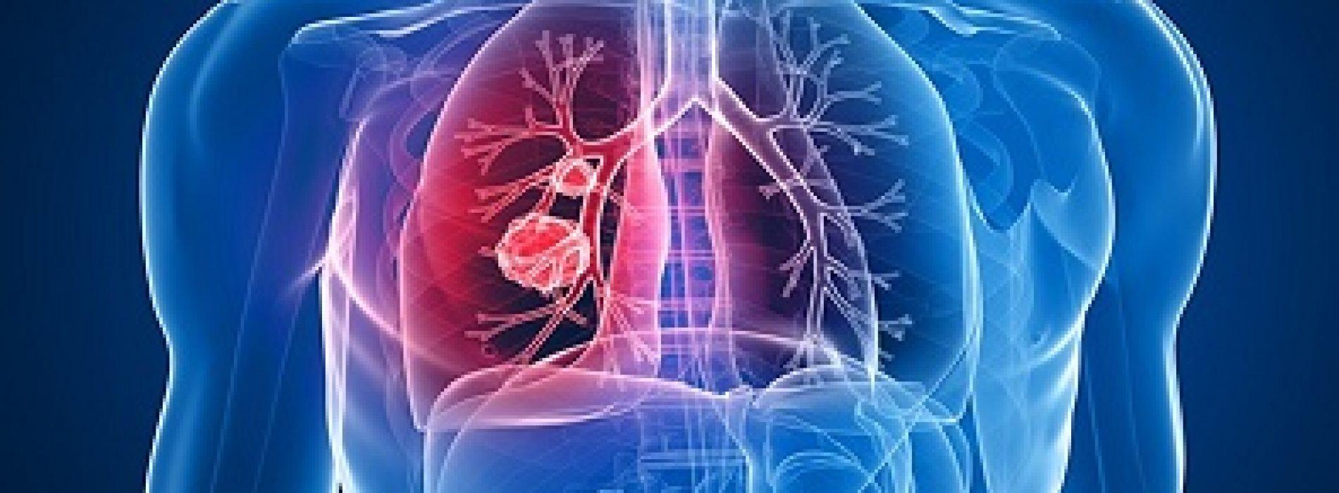 Inmuno-Oncología tratamiento contra el Cáncer de Pulmón