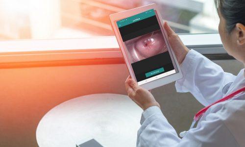 Nuevo sistema de telemedicina para detección temprana de cáncer de cuello uterino